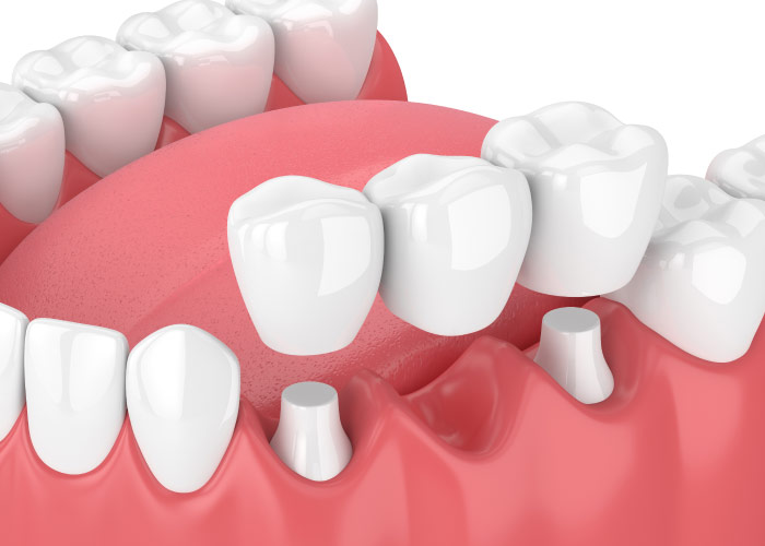 dental bridge and implant model
