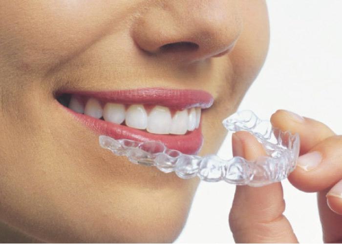 invisalign teeth straightening procedure