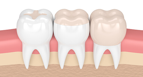 composite fillings illustration img-responsive